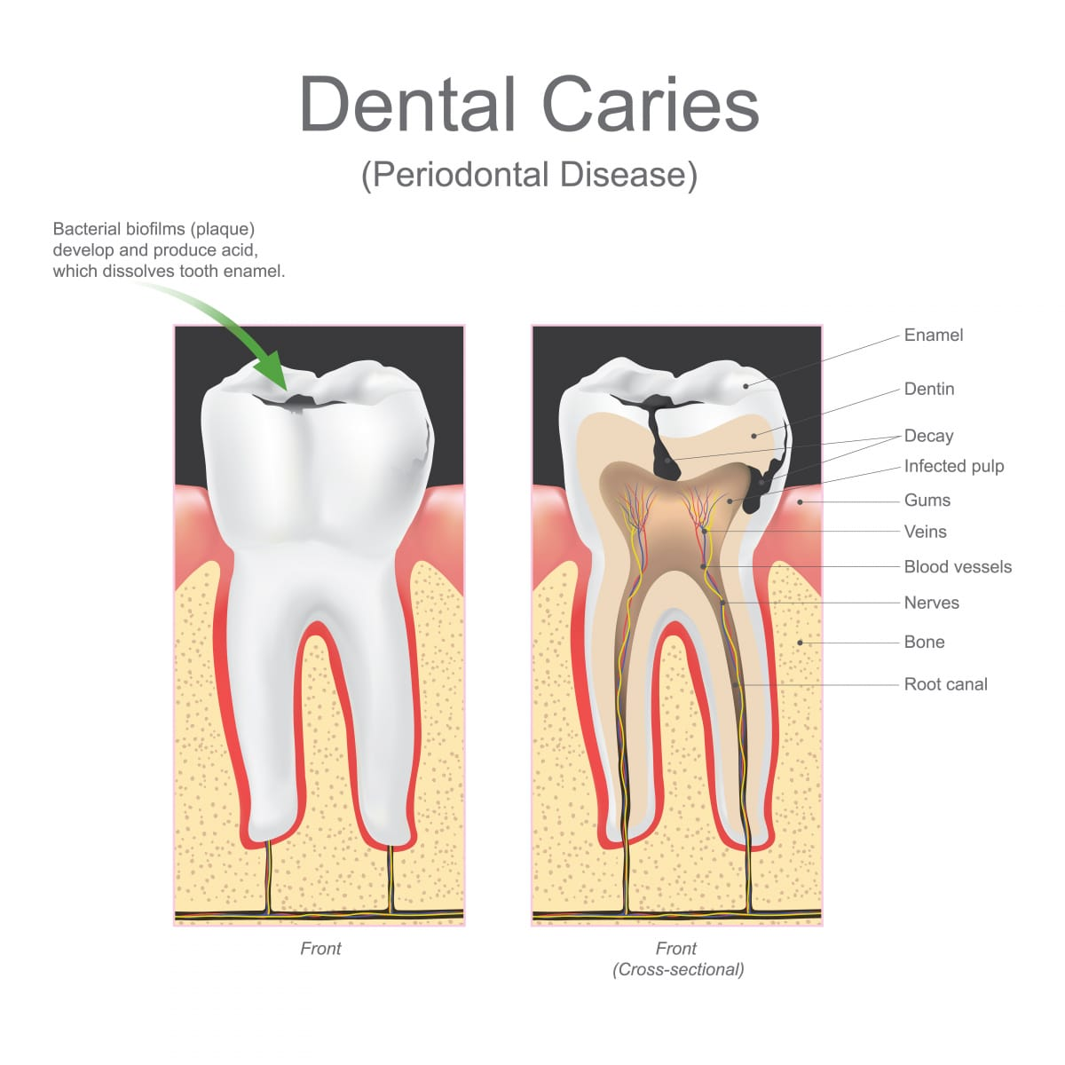 Microbiology dental caries