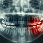 Mouth Cancer and The Dental Team